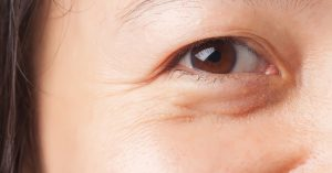 Eyebag Surgery Lower Blepharoplasty